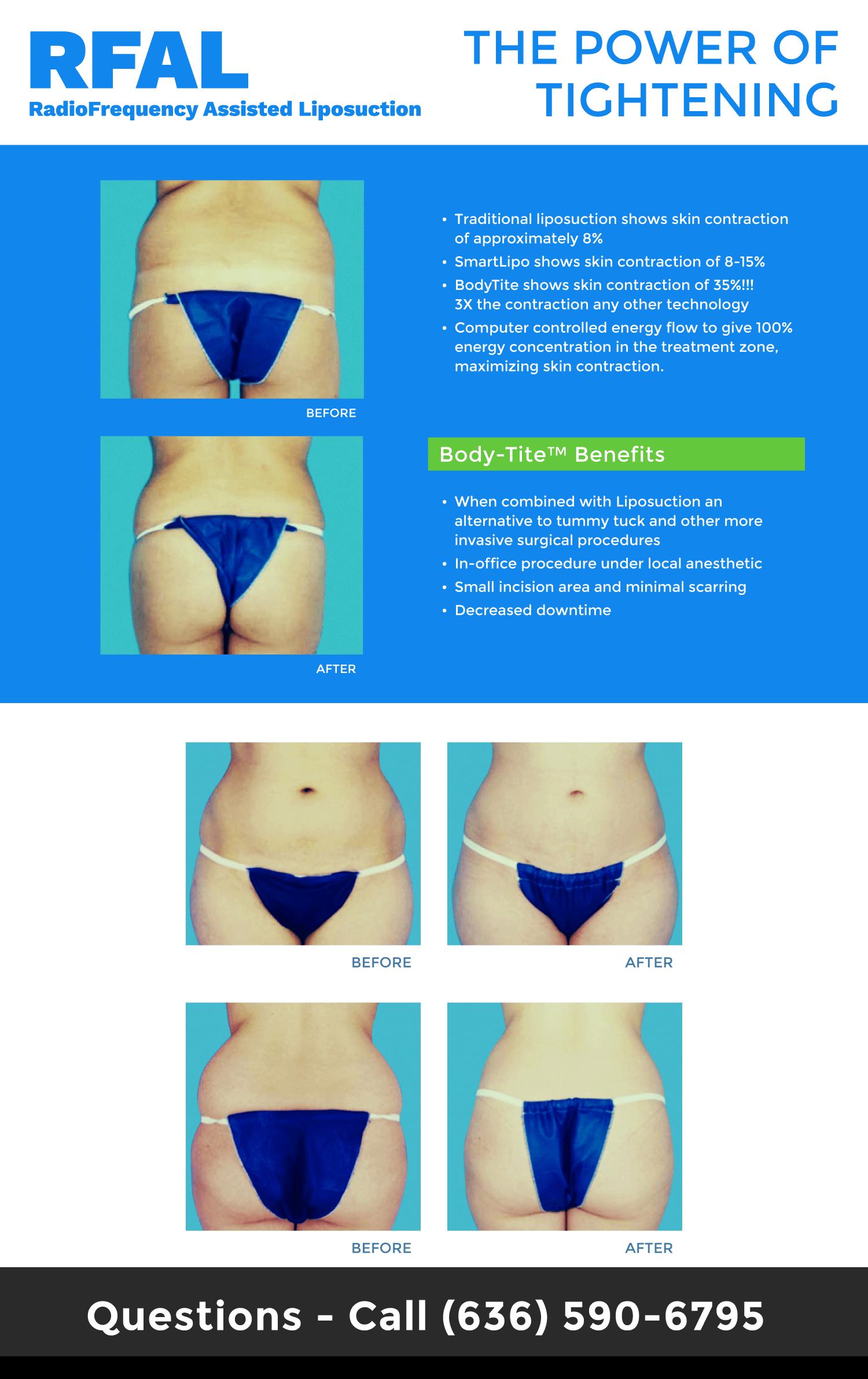 Bodytite Liposuction Skin Tightening