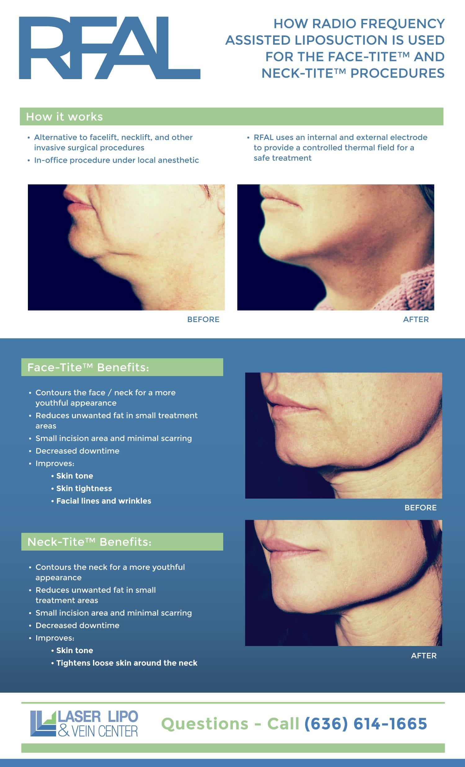 FaceTite Facelift Procedure Using RFAL